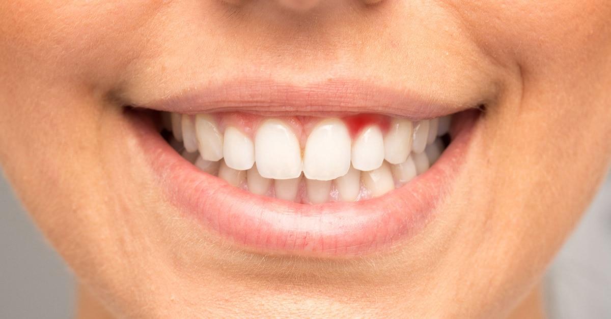 gum disease treatment in spalding