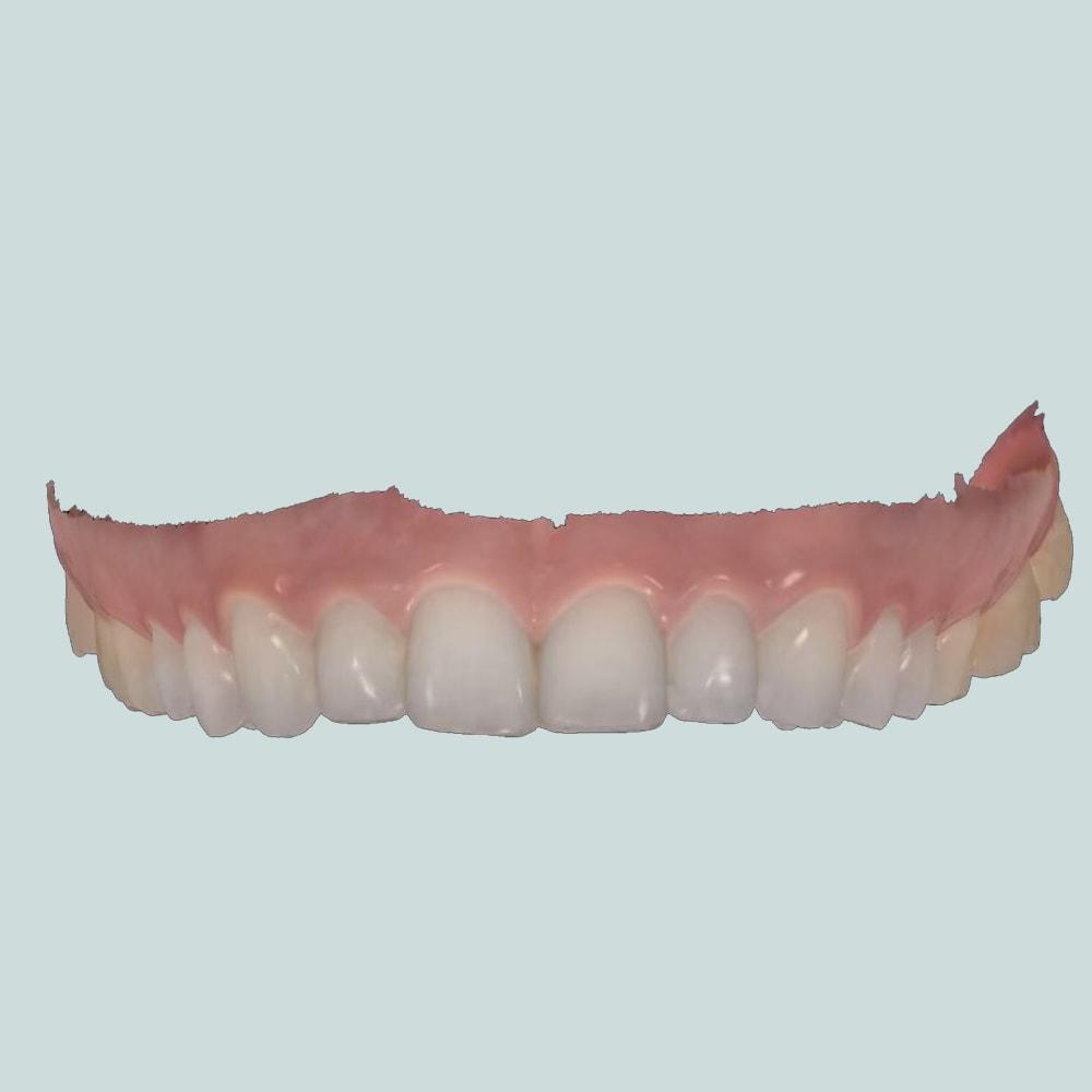 long sutton dentist 3d dental scanner